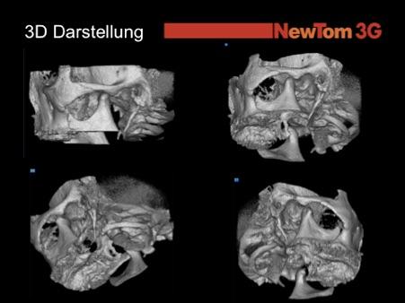 Die digitale Volumen Tomografie (DVT) ist die perfekte Röntgenaufnahme, wenn mit keiner anderen Methode eine präzise Diagnose gestellt werden kann.